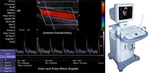 Doppler ultrahang a szemészetben